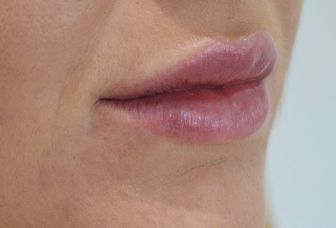 victoria-hearn-lips-after