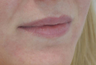 victoria-hearn-lips-before