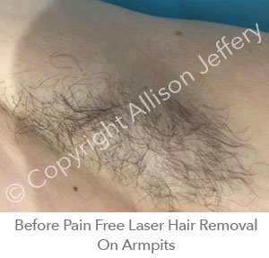 *Before Pain Free Laser Hair Removal On Armpits