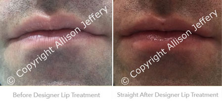 Before and After Designer Lips