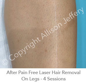 *After Pain Free Laser Hair Removal On Legs - 4 Sessions