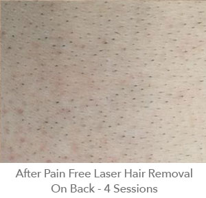 After Pain Free Laser Hair Removal On Back  - 4 sessions