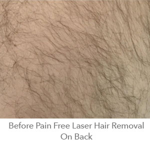Before Pain Free Laser Hair Removal On Back