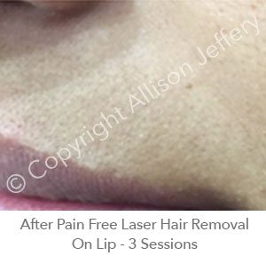 *After Pain Free Laser Hair Removal On Lip