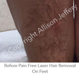 *Before Pain Free Laser Hair Removal On Feet