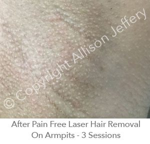 *After Pain Free Laser Hair Removal On Armpit