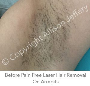 *Before Pain Free Laser Hair Removal On Armpit