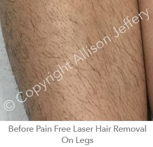 *Before Pain Free Laser Hair Removal On Legs