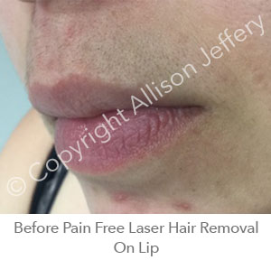 *Before Pain Free Laser Hair Removal On Lip