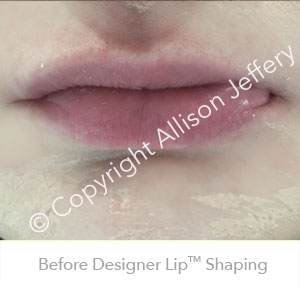 Before Designer Lip™ Shaping