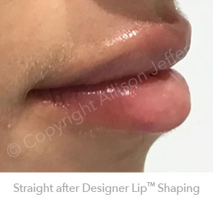 After Designer Lips Feb18