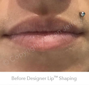 Before Designer Lips Feb18