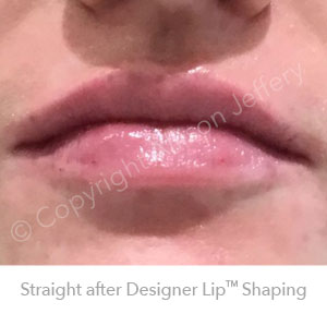 After Designer Lips™ Sep18