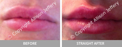 Before and Straight After Designer Lip Treatment