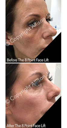 8 Point Face Lift