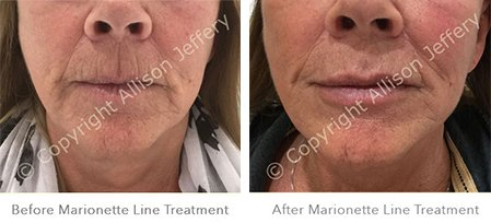 Before and After Dermal Filler Treatment