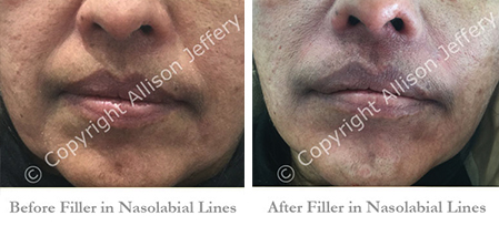 Non-Surgical Face Lift in Brighton and Hove | Join us at