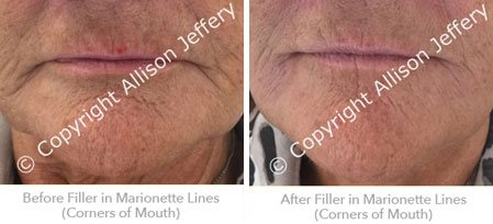 After Filler in Nasolabial Lines
