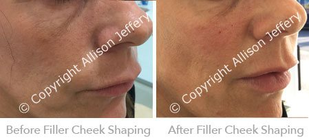Filler in cheek