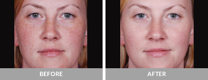 Before and After Obagi Medical Treatment
