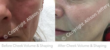 Before Filler in Cheeks - volume and shaping