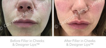 Before & after filler cheeks and Designer Lips™