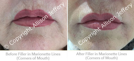 Before and After marionette line filler