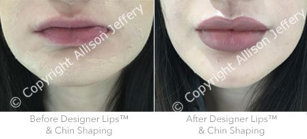 Before Filler in Chin & Designer Lips TM