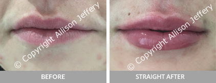 Sep Before after Designer Lips