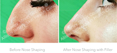 sep Before and After Nose Shaping