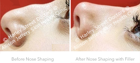 Sep Nose Shaping