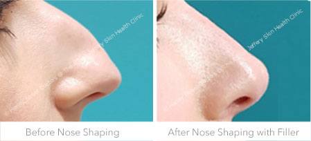 Before and After Nose Shaping with Filler