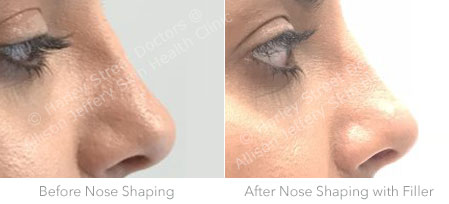 Harley Street Nose Shaping