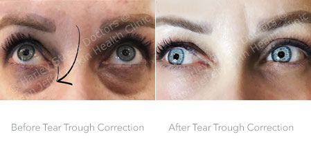 Harley Street Doctor Tear Trough Smoothing