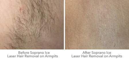 Receive Pain Free Laser Hair Removal In Brighton Near