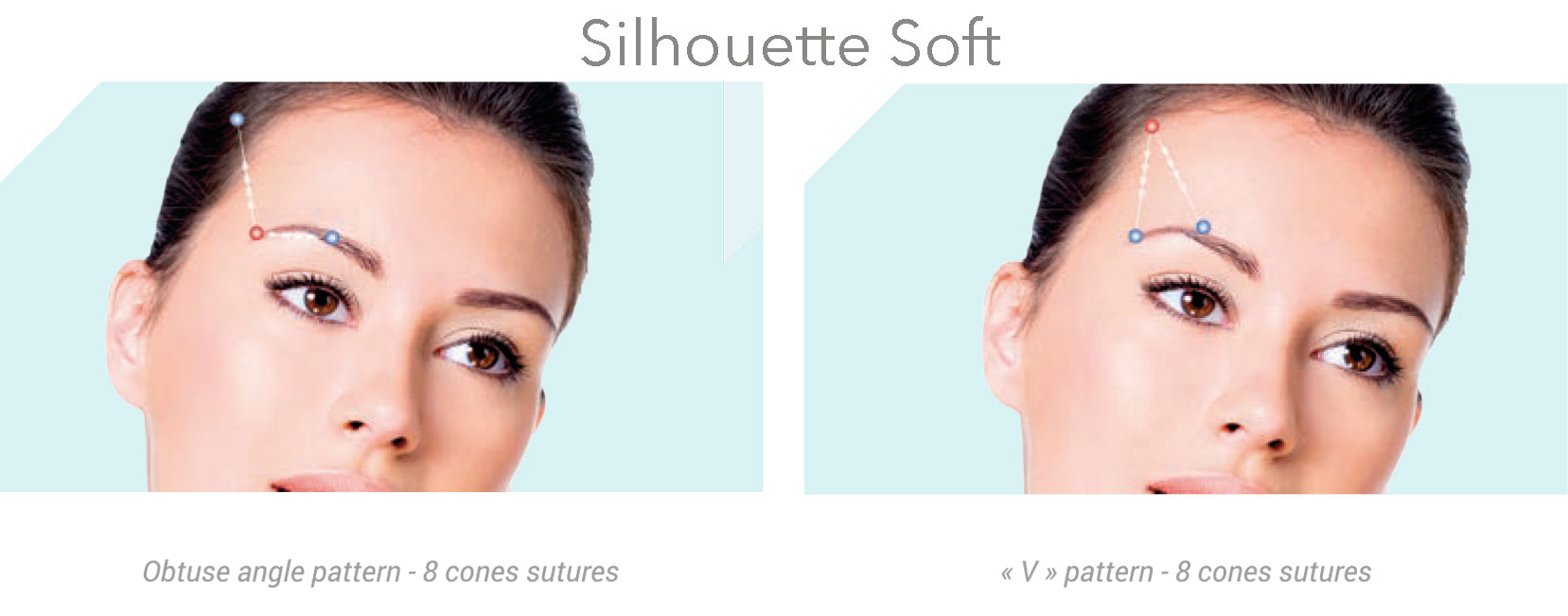 Before and After Silhouette Soft & PDO Thread Face Lift