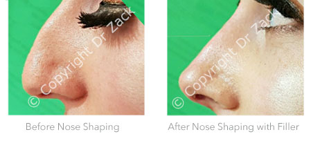 Before and After Nose Shaping