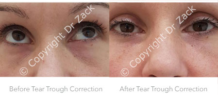Before and After Tear Troughs